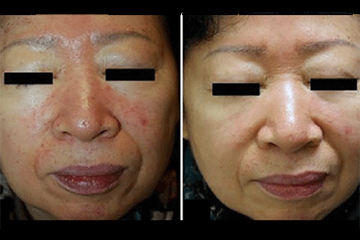 rosacea-treatment-for-acne-breakout-before-after.jpg
