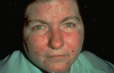 rosacea-symptoms_acne.jpg