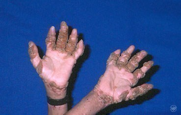 warts-symptoms-hands-.jpg