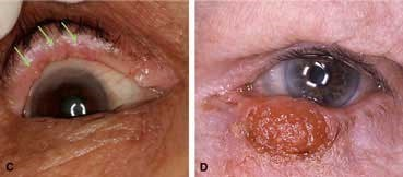 Sebaceous-carcinoma_symptoms.jpg